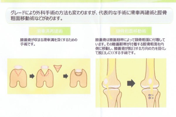 膝蓋骨脱臼の手術方法